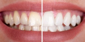 Tooth discolouration and tooth whitening