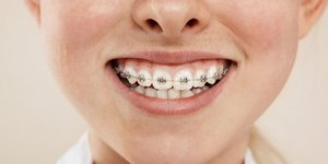 Braces and caries: Preventing caries with fixed braces