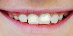 Fluorosis – Causes and Treatment