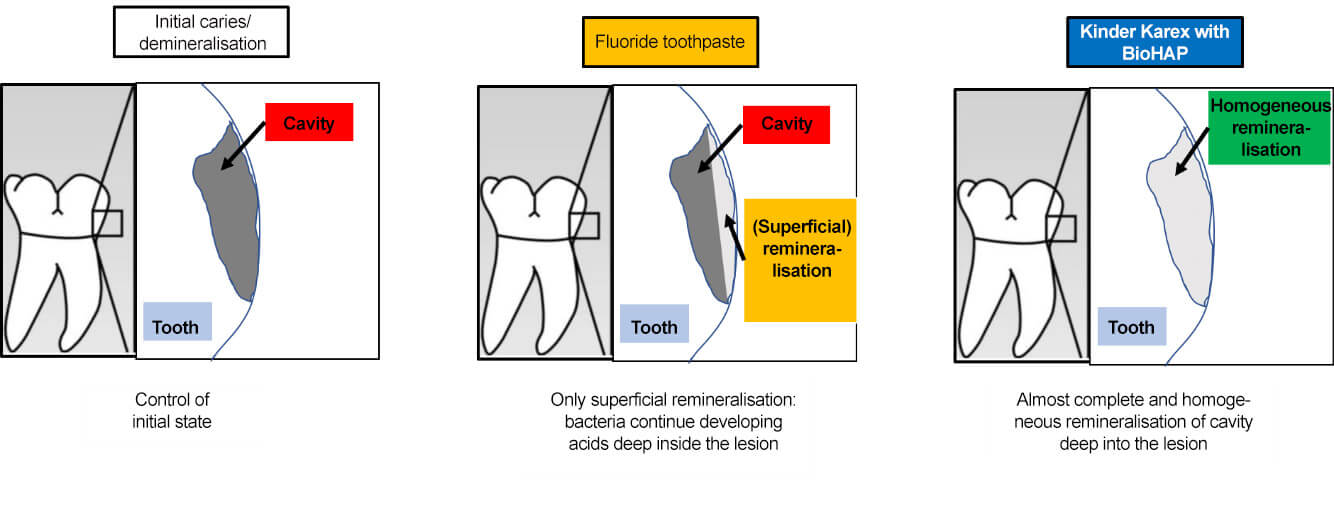 Schematic figure by Amaechi et al. 2019: BioHAP evenly remineralises (initial) caries deep into the lesion.