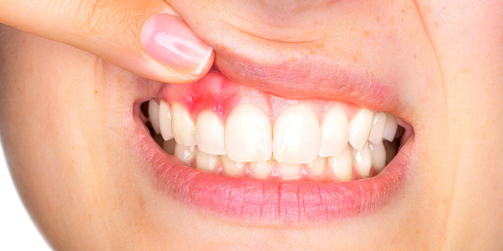 Inflammation of the gums: Gingivitis or periodontitis?